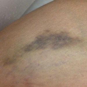 The bruise I got after being kicked by my Quarter Horse mare Powder.